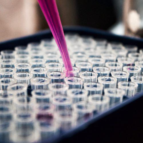 Test Anticuerpos o PCR COVID